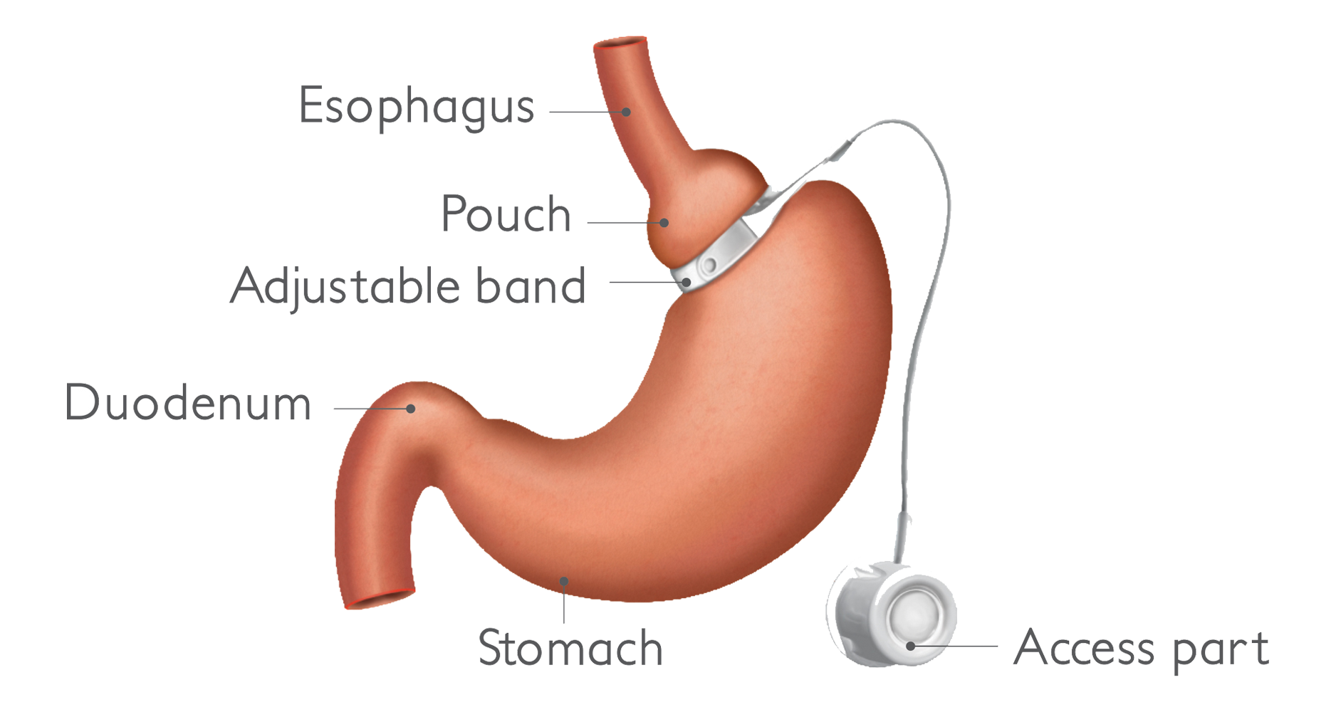 Adjustable Gastric Banding Weight Loss Surgery In Ahmadabad